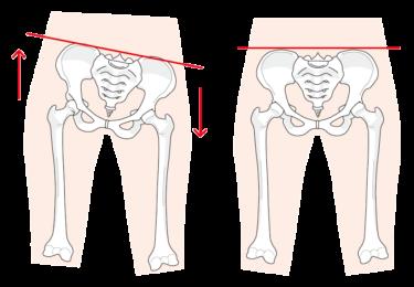【ゴルフトレーニングの科学的根拠No.112】骨盤の非対称性と腰痛の関係
